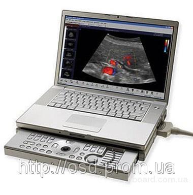 продам).  Портативный ультразвуковой сканер Aloka Prosound C3 (Портативный УЗИ аппарат) .