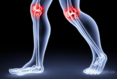 Тендовагинит плечевого сустава симптомы и лечение