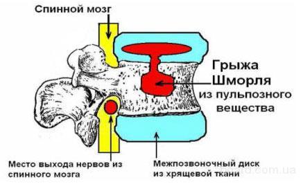 Диагностика и лечение грыж диска и грыжи Шморля